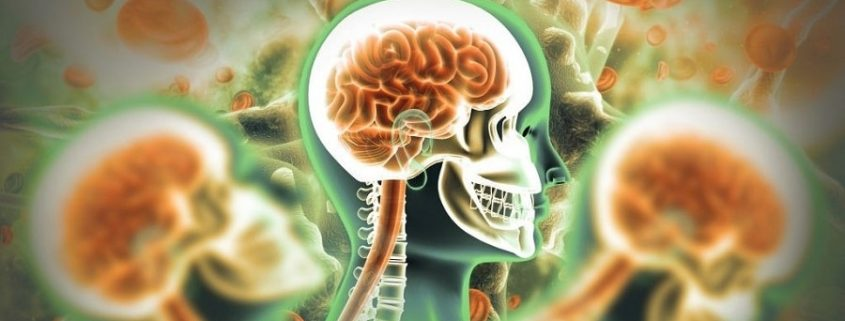 What Accidents Commonly Cause Traumatic Brain Injuries